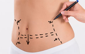 abdominoplastia chicago