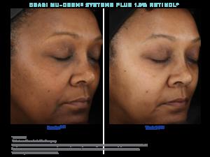 tratamiento de arrugas - Park Ridge-IL